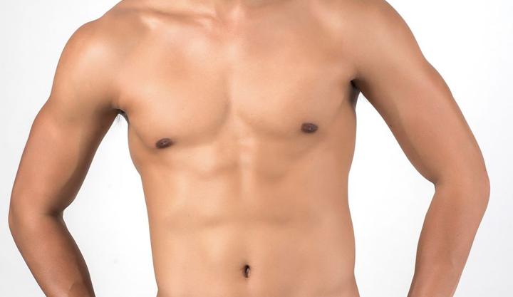 Ginecomastia – Falsos senos en varón